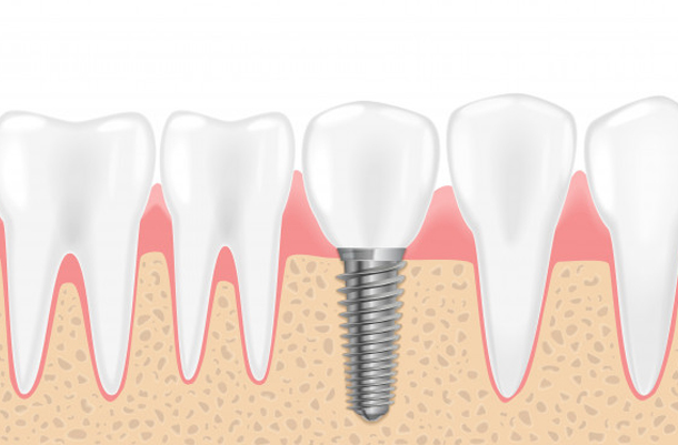 Bone Growth Is Essential For The Proper Implantation Of Dental
