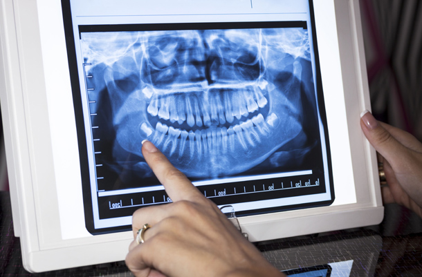 What Are Dental X Rays