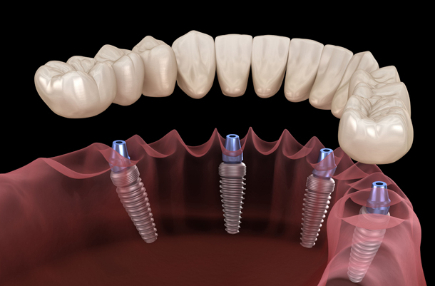 What Are Implant Supported Dentures