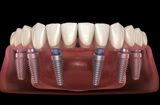 Why Would Implant Supported Dentures Be Needed