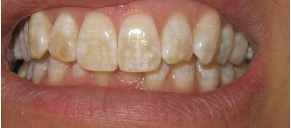 Causes Of Brown Spots On Your Teeth